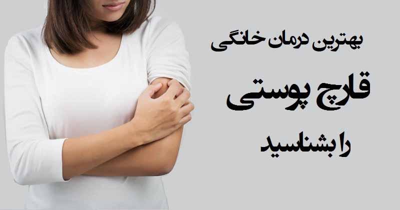 درمان عفونت قارچ پوستی